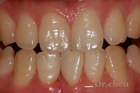 纳米树脂修复前牙间隙